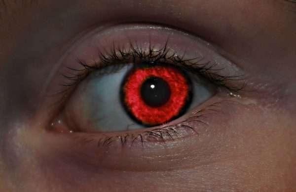 Эффект «красных глаз»